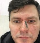 Актера Дзюбу во время гастролей жестоко избил коллега по цеху