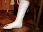 Ургант сломал ногу на скользкой лестнице