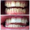Космос а не улыбканатуральное отбеливание зубов
